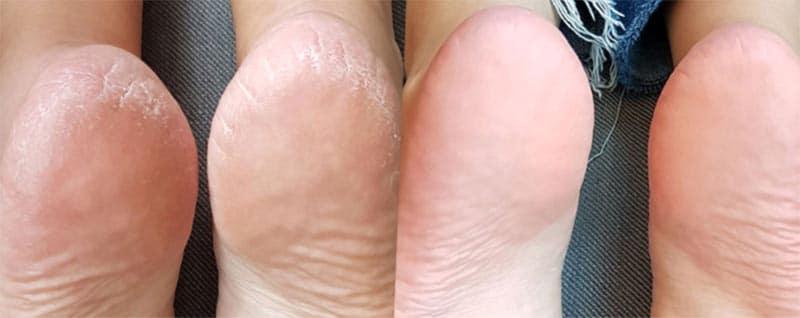 instant foot peeling resultats